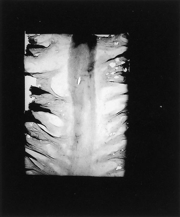 Lucie Lefebvre, Radio 3, 1991, extrait de la série Salle d'urgence, original en couleurs, 61 x 50 x 8 cm. ©Lucie Lefebvre