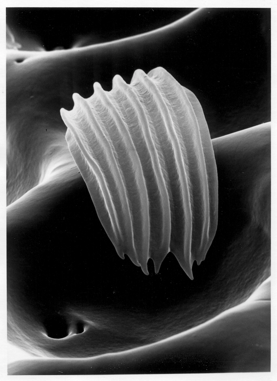 Claudia Fährenkemper, Sensitory hair of a beetle (3000x), 1996, from the series Imago, silver prints on fibre-based paper, 57 x 46 cm, collection: National Gallery of Canada, collection: National Gallery of Canada. © Claudia Fährenkemper