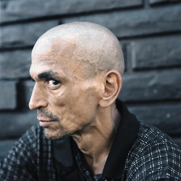 Tony Fouhse, Clark, 2010, de la série / from the series user Portraits of Crack Addicts, 2007-2010, impression numérique / digital prints, 56 x 70 cm ou 56 x 56 cm. © Tony Fouhse