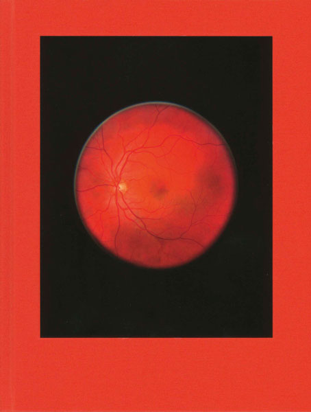 Retinal Shift Mikhael Subotzky Steidl, Göttingen, 2012, 490 p.