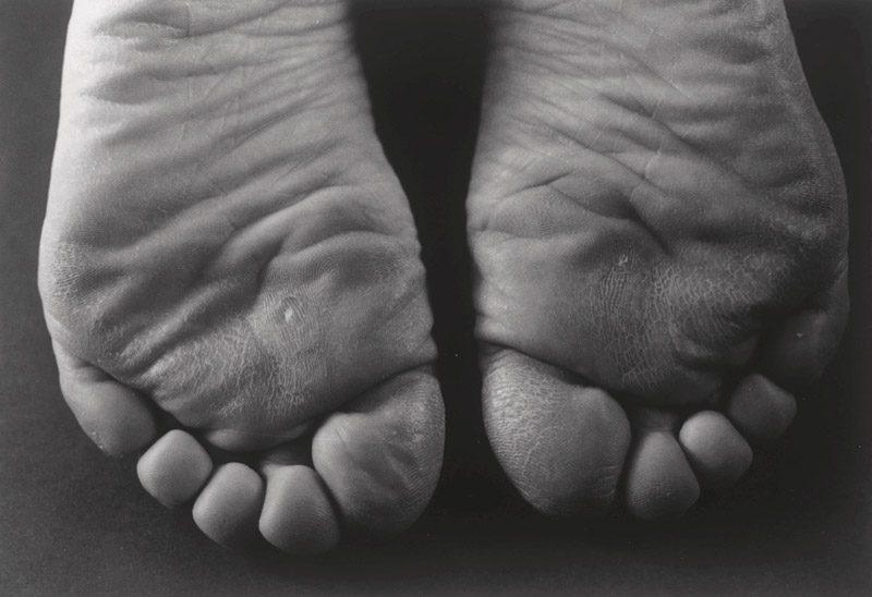 Ishiuchi Miyako, 1·9·4·7 #15, negative / négatif 1988–1989, print / impression 1994, gelatin silver print / épreuve argentique, 40 × 55 cm, courtesy of / permission de The J. Paul Getty Museum, Los Angeles
